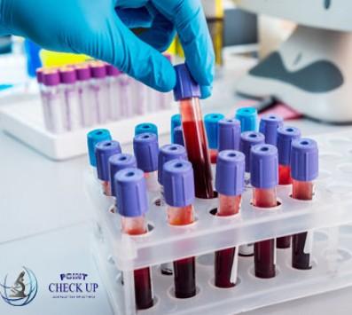 Αιματολογικές Εξετάσεις Check-Up - Σεπόλια - 26€ από 70€ για ένα Πλήρες Αιματολο health