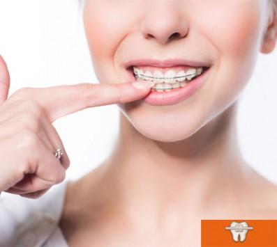 Προληπτικός Ορθοδοντικός Έλεγχος+Καθαρισμός Δοντιών - Παλαιό Φάληρο - 40€ από 120€ (Έκπτωση 67%) για έναν Προληπτικό Ορθοδοντικό Έλεγχο & Καθαρισμό Δοντιών με Υπερήχους και Σοδοβολή! Ορθοδοντικός Έλεγχος απαραίτητος για αισθητικά προβλήματα, τερηδόνες, περιοδοντίτιδα ,πόνους στην κροταφογναθική άρθρωση (περιοχή μπροστά από το αυτί μας), φθορές στα δόντια και προβλήματα ομιλίας! Για υγιή και όμορφα χαμόγελα, από την «Οδοντιατρική Παλαιού Φαλήρου» στο Παλαιό Φάληρο!!! εικόνα