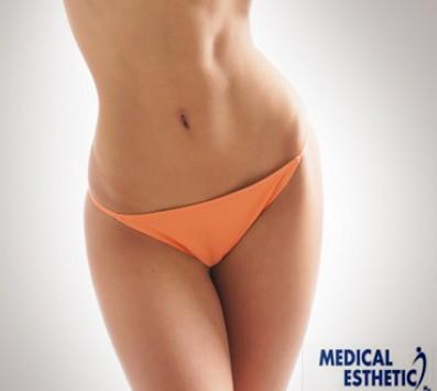 Κρυολιπολύση - Σύνταγμα - 25€ από 150€ (Έκπτωση 83%) για μια Συνεδρία Κρυολιπολύσης για αποτελεσματική αντιμετώπιση του τοπικού πάχους, χαλάρωσης και καταπολέμηση της κυτταρίτιδας, στην αλυσίδα καταστημάτων «Medical Εsthetics» στο Σύνταγμα πολύ κοντά στο Μετρό!!! εικόνα
