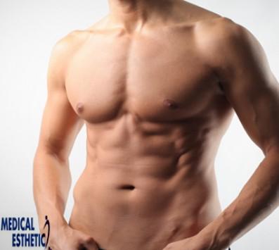 Full Body Αποτρίχωση Σύνταγμα - 180€ από 1350€ (Έκπτωση 87%) για 3 Συνεδρίες Full Body Αποτρίχωσης με IPL τελευταίας γενιάς με ενσωματωμένη κεφαλή ψύξης μόνο για άνδρες στα «Medical Εsthetics» στο Σύνταγμα!!! εικόνα