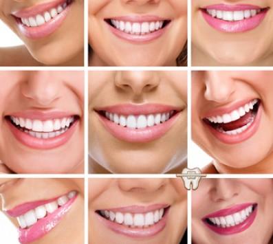 Τοποθέτηση Εμφυτεύματος Άνω ή Κάτω Γνάθου - Παλαιό Φάληρο - 600€ από 1300€ (Έκπτωση 54%) για την Τοποθέτηση ενός Εμφυτεύματος άνω ή κάτω γνάθου σε 2 φάσεις! Αντιμετωπίστε τα προβλήματα εμφάνισης, μάσησης και ομιλίας! Από την «Οδοντιατρική Παλαιού Φαλήρου» στο Παλαιό Φάληρο!!! εικόνα