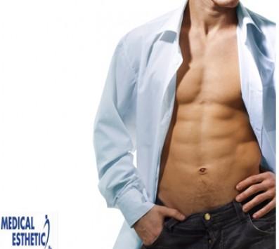 Συνεδρία Κρυολιπολύσης+RF - Σύνταγμα - 30€ από 320€ (Έκπτωση 91%) για μια Συνεδρία Κρυολιπολύσης και ένα RF Σώματος για αποτελεσματική αντιμετώπιση του τοπικού πάχους αποκλειστικά για άνδρες, στην αλυσίδα καταστημάτων «Medical Εsthetics» στο Σύνταγμα πολύ κοντά στο Μετρό!!!